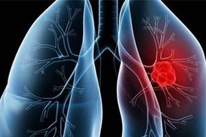 中国十大高发恶性肿瘤排行榜:肺癌居首
