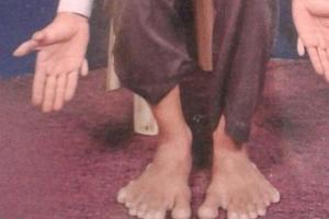 世界之最:印度男子有28根手指脚趾