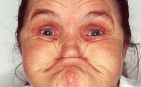 世界上最丑陋的人,62岁的安妮·伍兹(面部表情丑哭你)