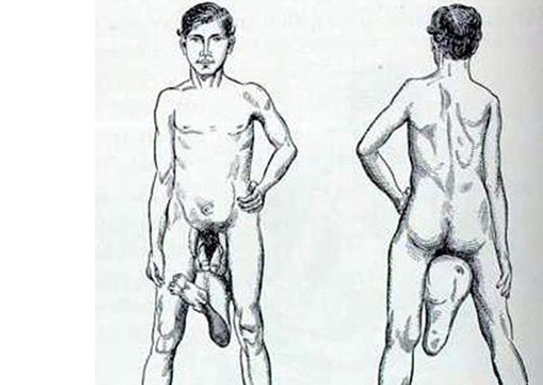 世界十大怪胎:狮面人上榜,竟存在拥有两个阴茎的男人