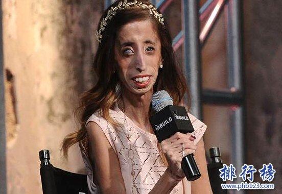 世界上最丑的女人:利兹·维拉斯奎兹