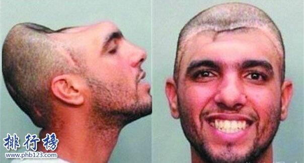 """世界上最奇葩的脑袋:""""半脑哥""""因车祸切掉半个脑袋(侧面惊人)"""