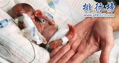 世界上最小的婴儿:体重仅200多克,小袋洗衣粉都比他重