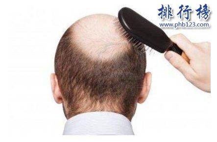 全球防脱发品牌排行榜:防脱发品牌哪个好?