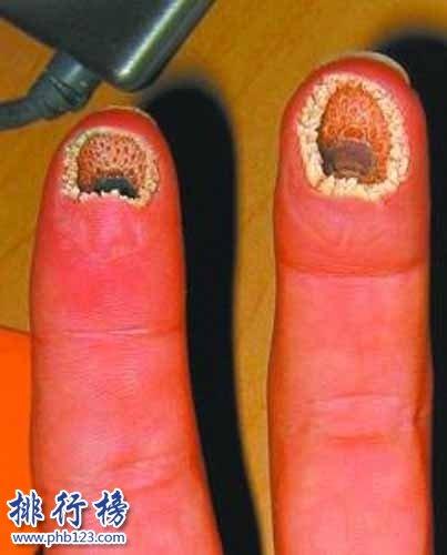 空手指是什么病能治好吗 空手指图片是真的吗(令人全身发麻)