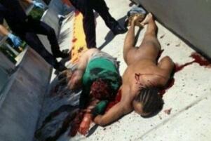 美国食脸男鲁迪·尤金,吸毒后裸奔啃掉路人整张脸