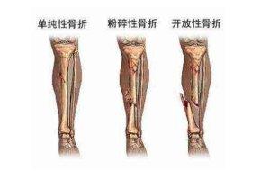 骨外科哪个医院好,中国骨外科医院排名top100