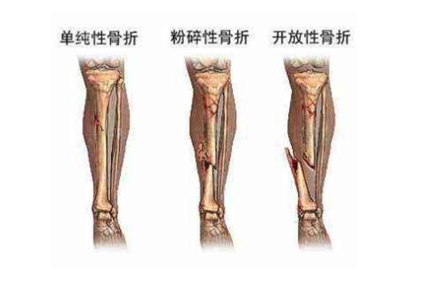 中国骨外科医院排名top100