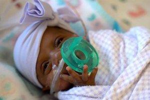 世界最小存活婴儿出院 早产5个月,体重只有245克
