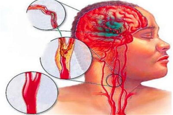 世界十大疼痛 急性阑尾炎上榜,难产疼痛指数无法估计