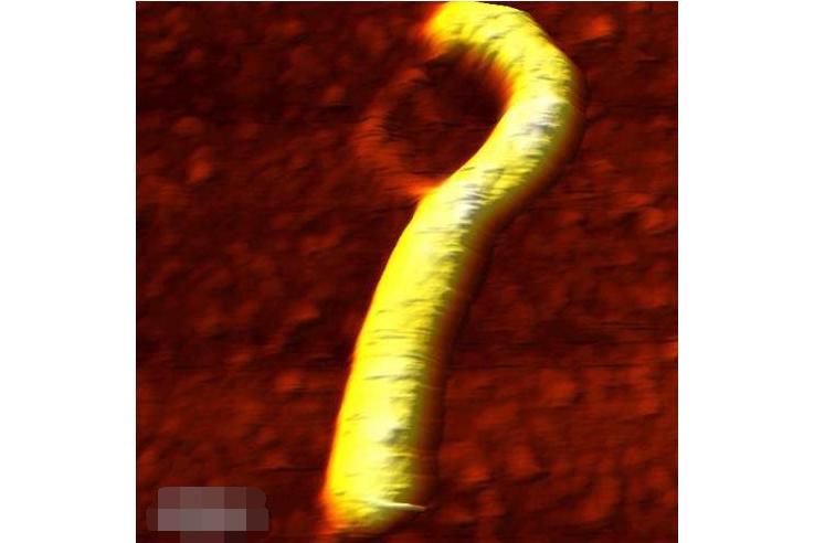 世界破坏力最强的十大病毒 埃博拉位列第一,天花上榜