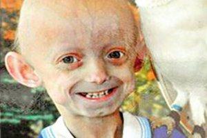 世界十大奇怪的病 就连大笑都可能会导致死亡